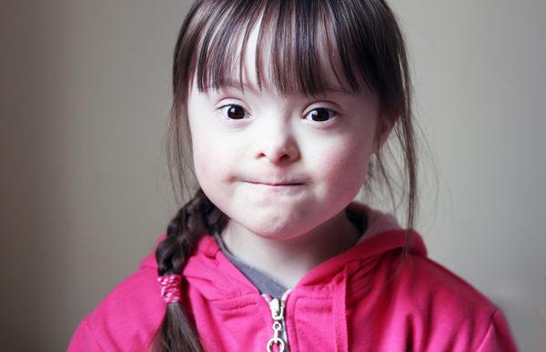 Island tæt på helt at udrydde børn med Downs syndrom